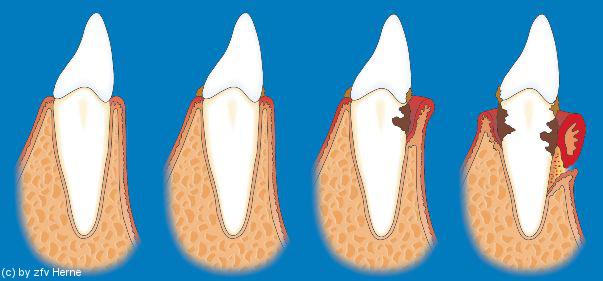 Grafik zu Gingivitis und Parodontitis